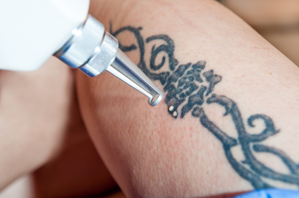 Laser Tattoo Removal Integrated Dermatology Of Reston