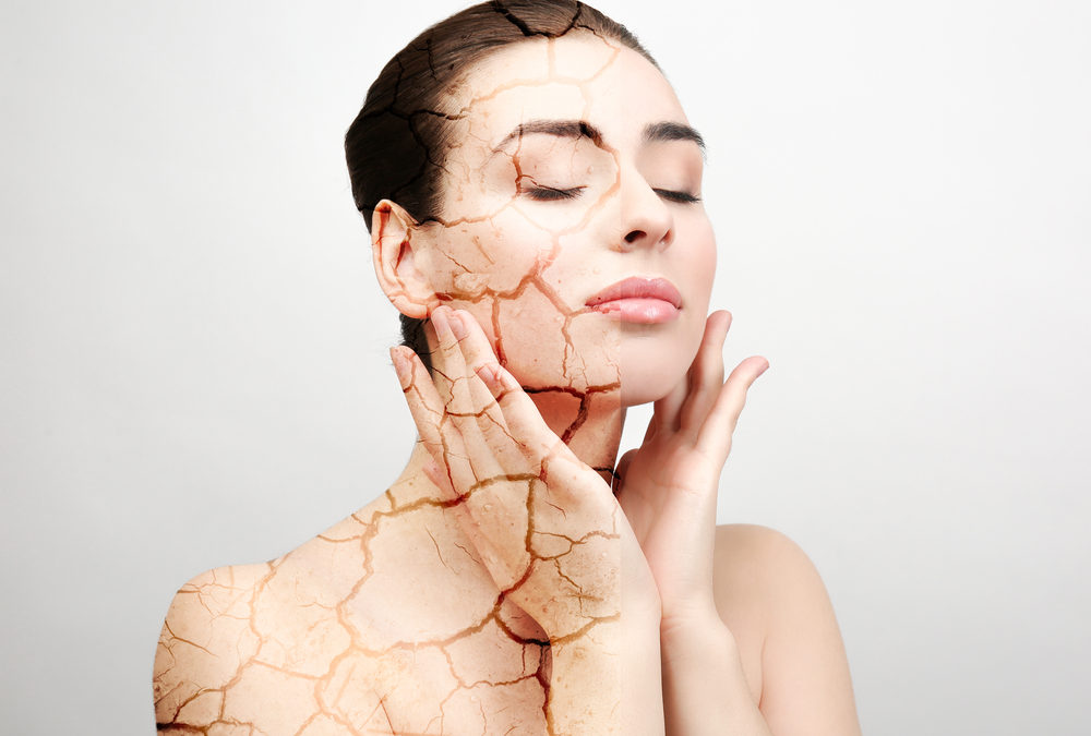 What to Do About Dry, Cracked Skin in the Winter