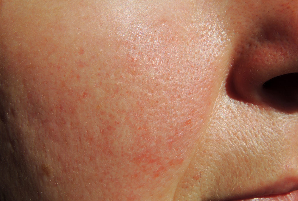 Rosacea: Best Treatment in Reston, VA