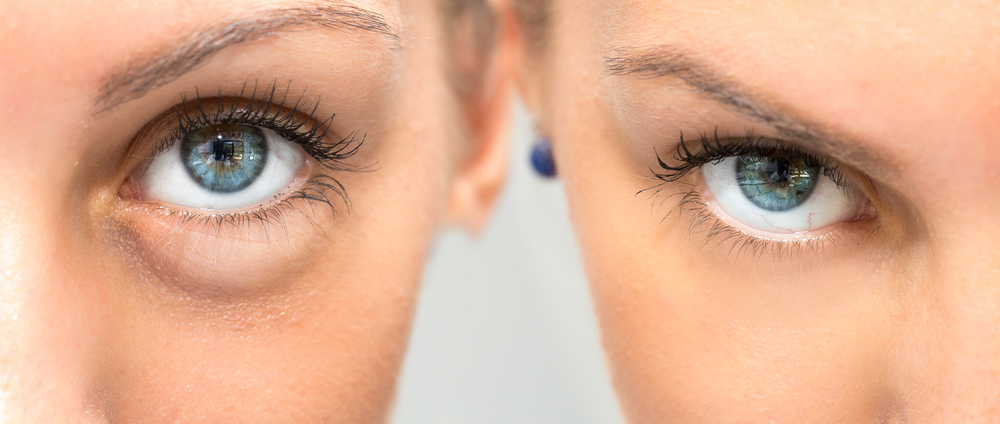How Filler Can Cure Your Dark Under Eye Circles