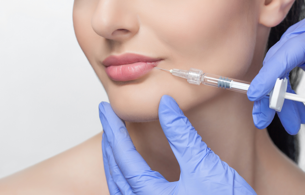 5 Lip Augmentation Benefits