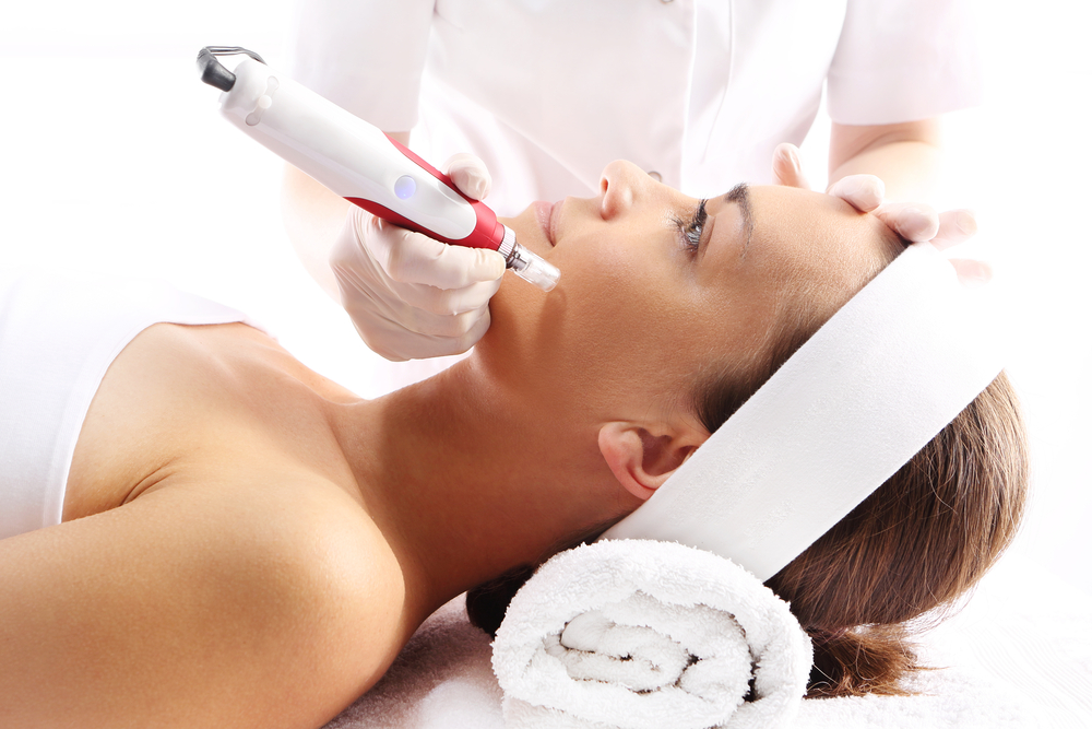 6 Amazing Benefits of Microneedling