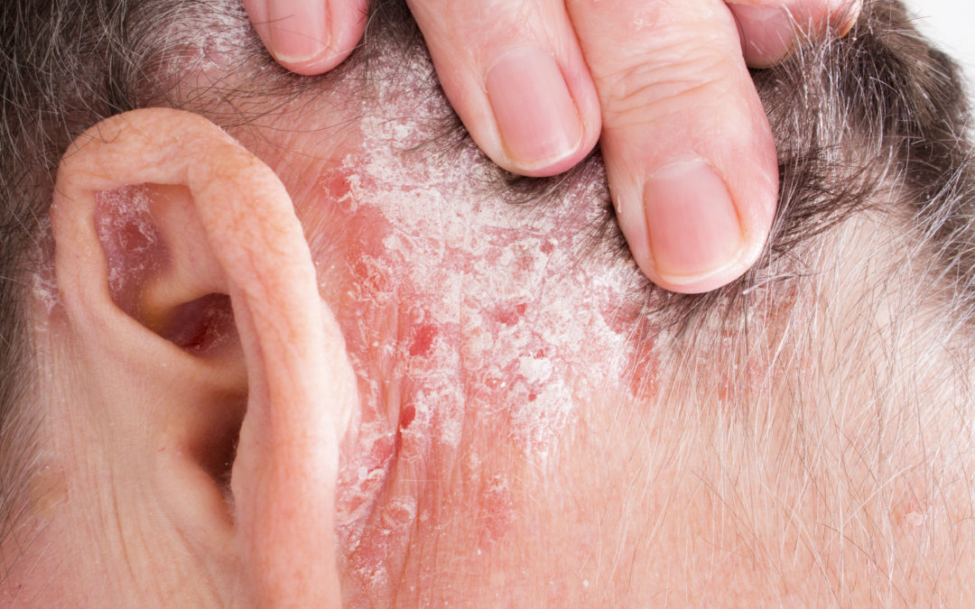 Best Treatment Options for Facial Psoriasis