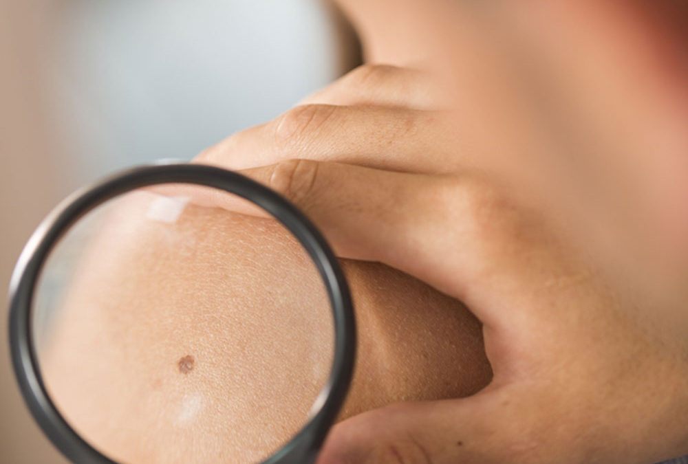 Diagnosing and Treating Skin Cancer