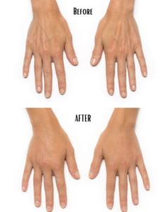 radiesse for hands reston