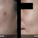 brown spot removal reston