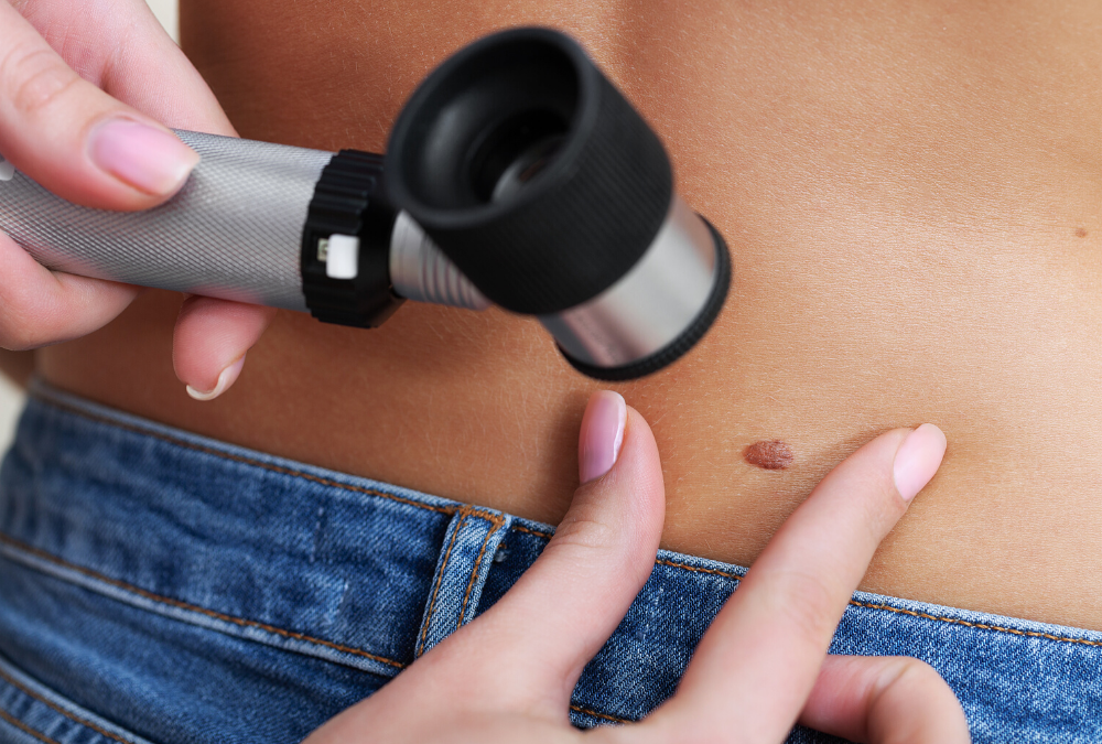 Skin Cancer Screening: What You Should Expect