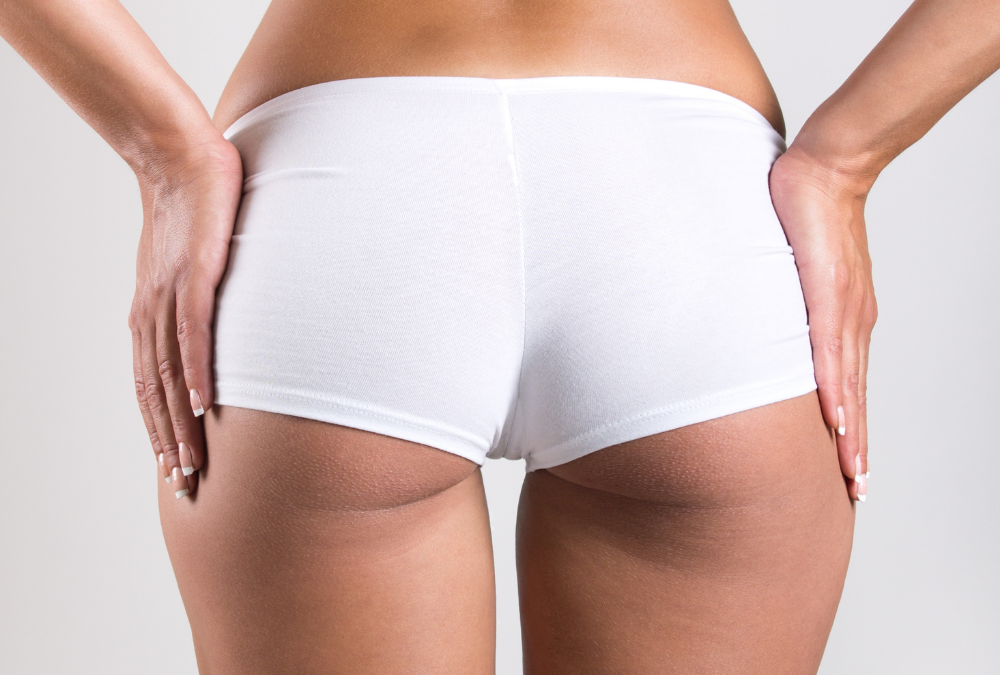 Say Goodbye to Cellulite With Profound RF Microneedling